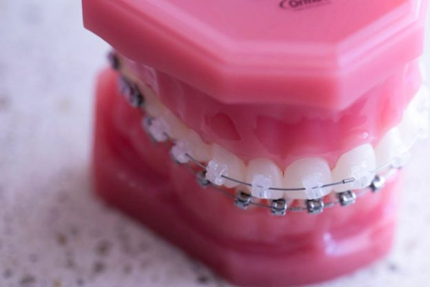 How Much Do Braces Cost?